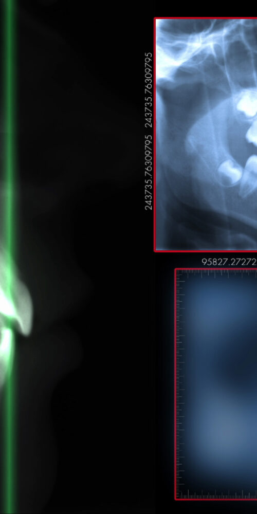 cone beam technology in dentistry