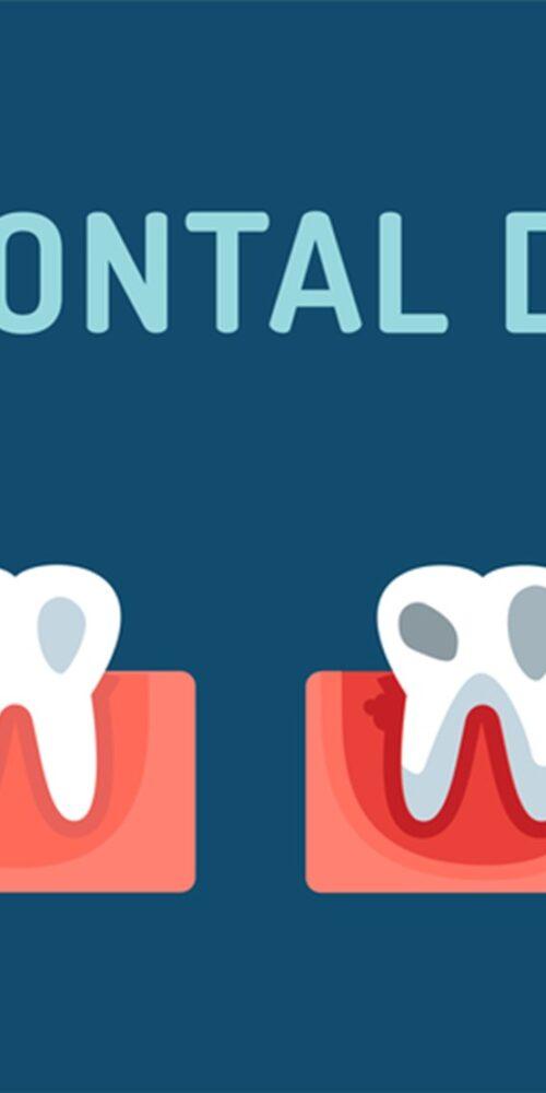 image of progression of periodontal disease