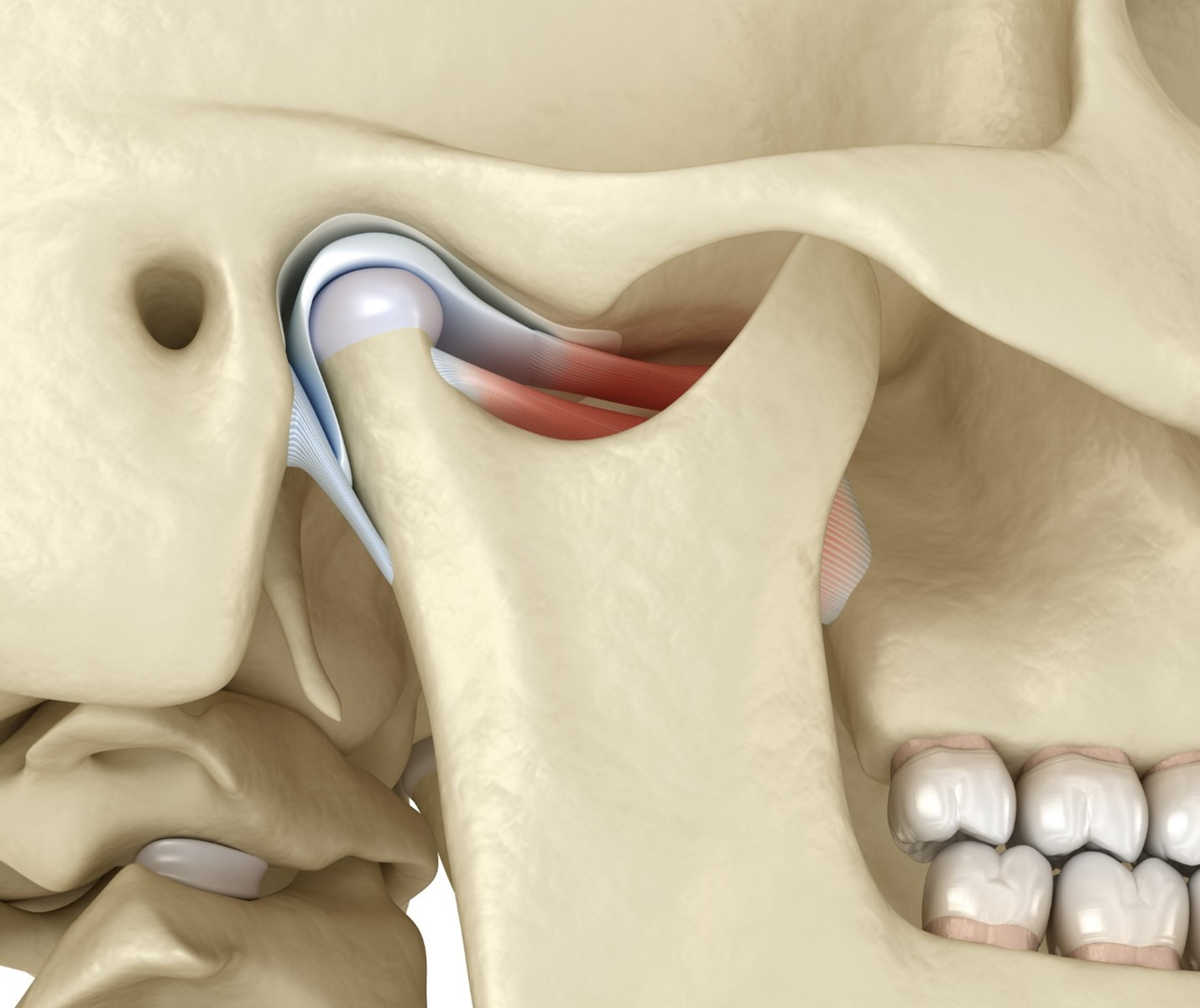 6 Signs That You May Have TMJ Disorder