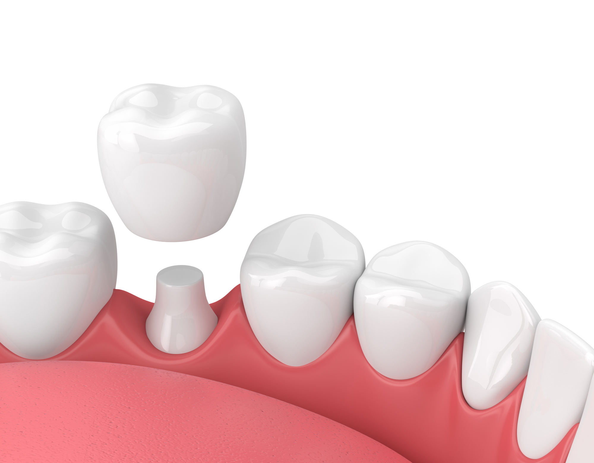 Metal-Free Crowns: Materials, Benefits, and the Procedure